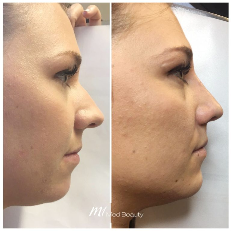 dermal-fillers-191002_Nose_BA.jpg