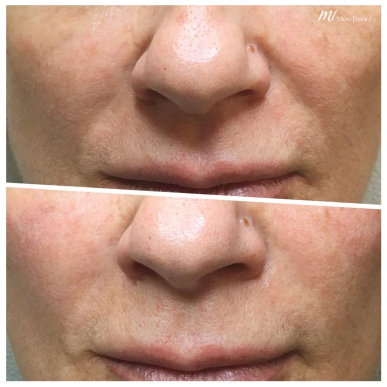 dermal-fillers-200110_Nasolabial_BA.jpg