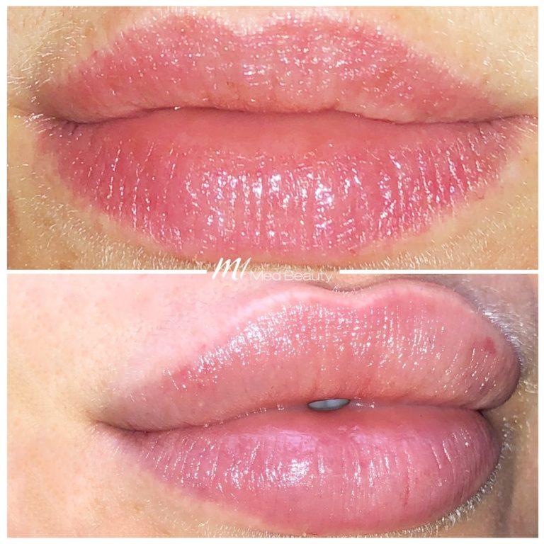 lip-fillers-190329_BA.jpg