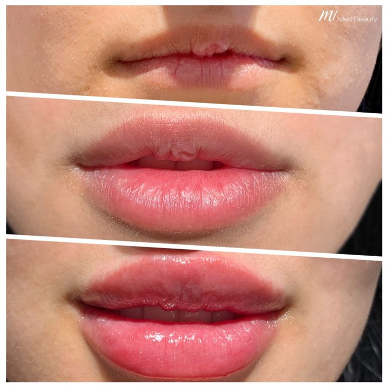 lip-fillers-191214_BA.jpg