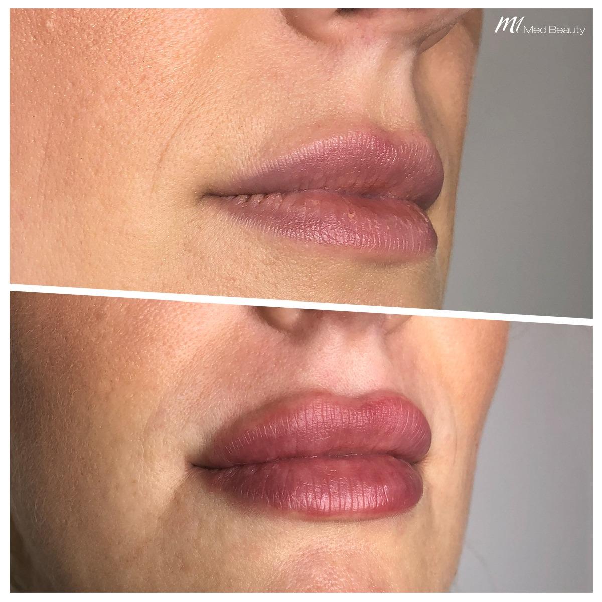 lip-fillers-191225_BA.jpg