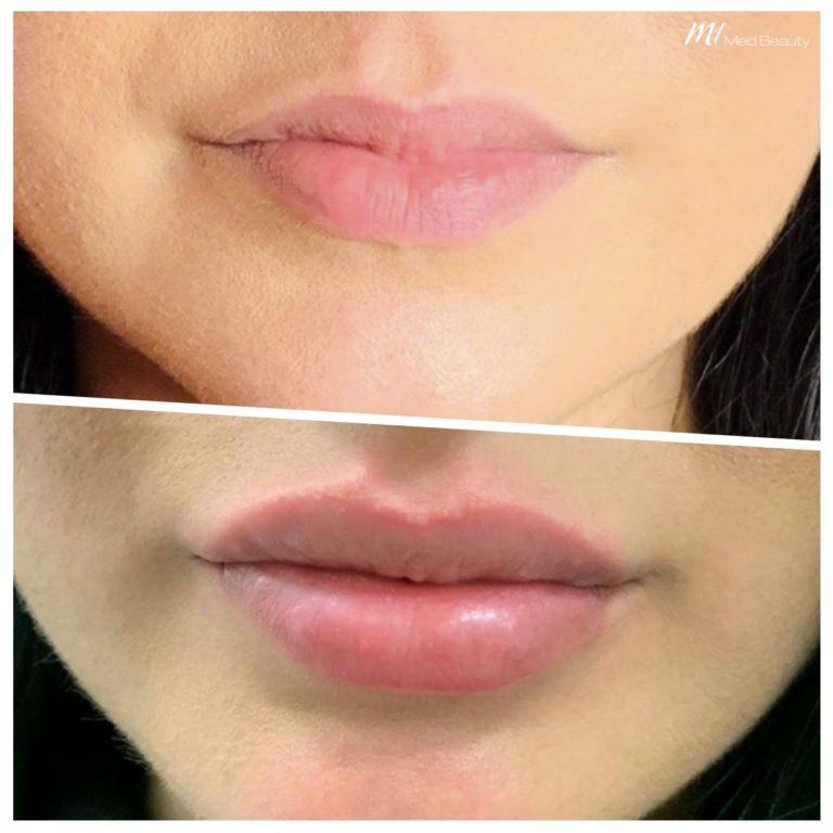 lip-fillers-200202_BA.jpg
