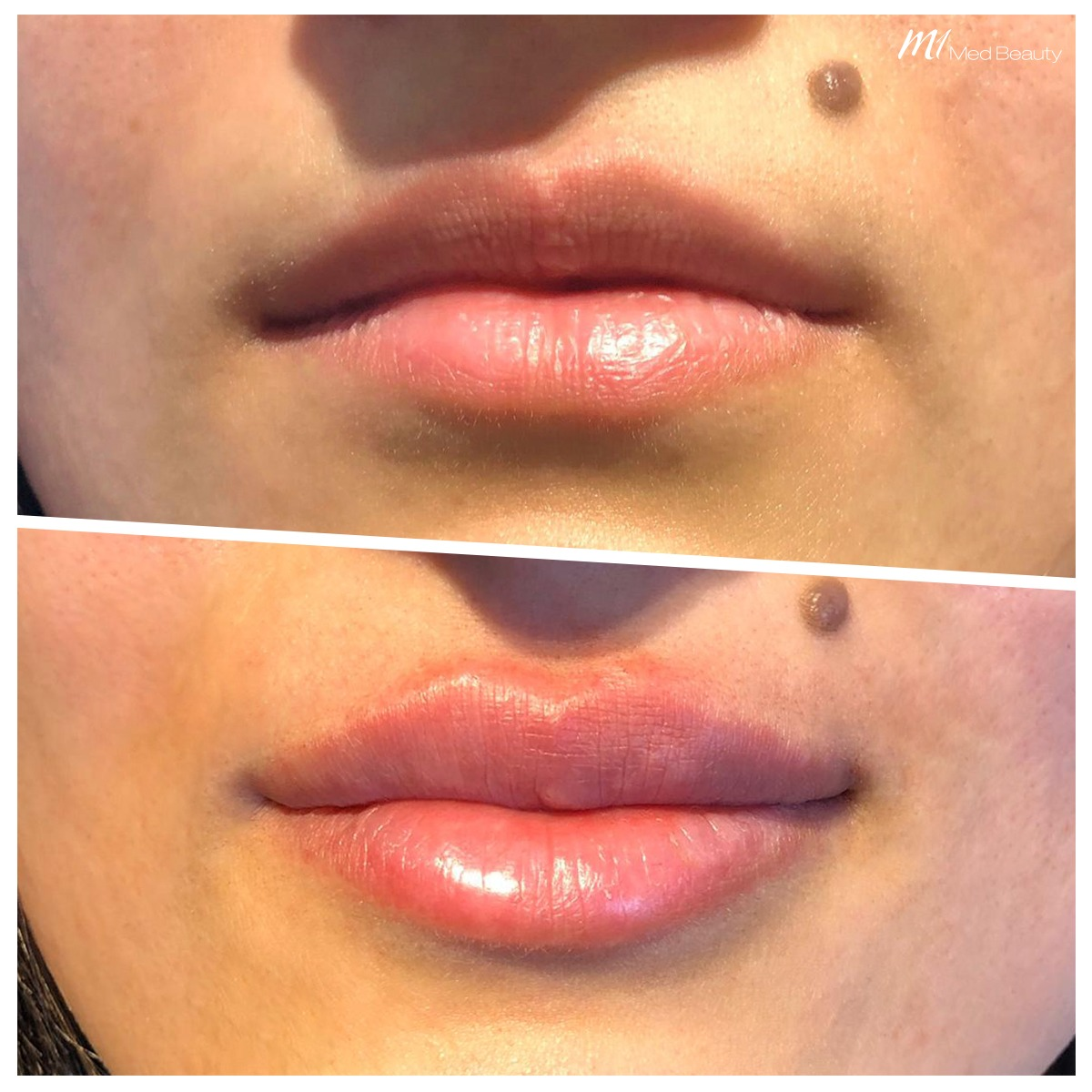 lip-fillers-200320_BA.jpg