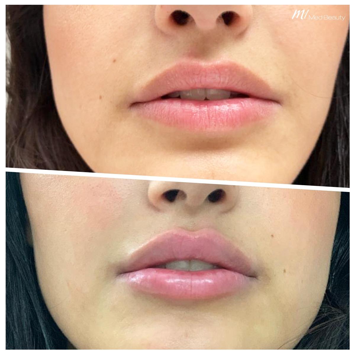 lip-fillers-200527_BA.jpg