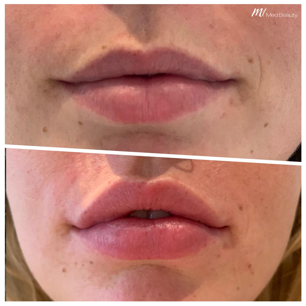 lip-fillers-200527_BA5.jpg
