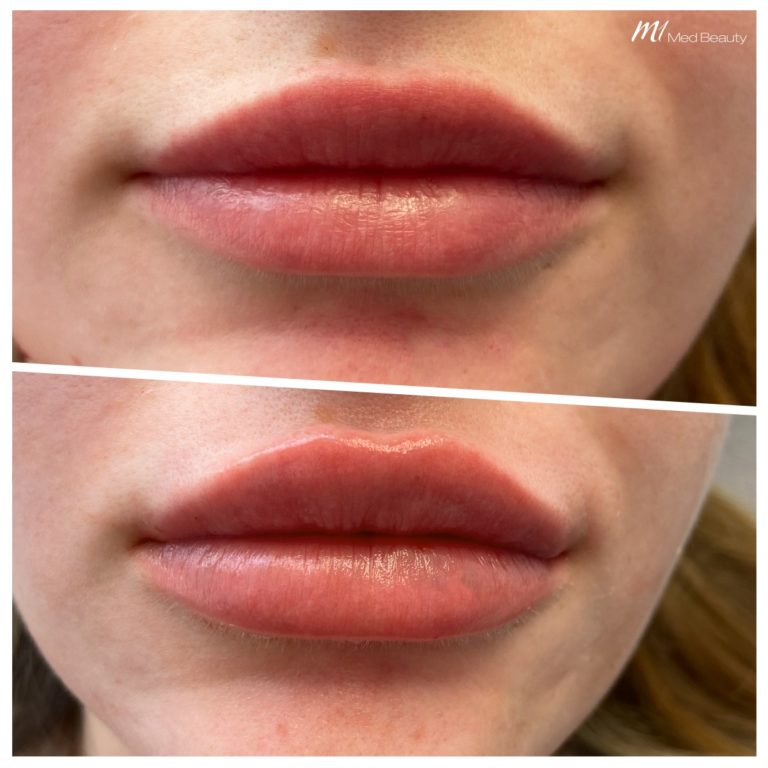 lip-fillers-200608_BA.jpg